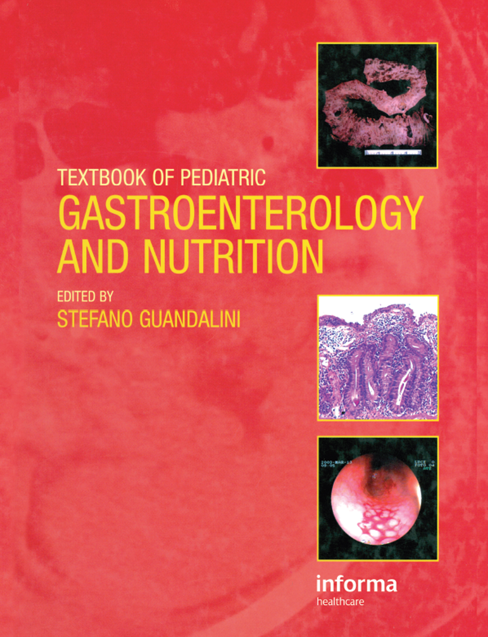 Textbook of Pediatric Gastroenterology and Nutrition