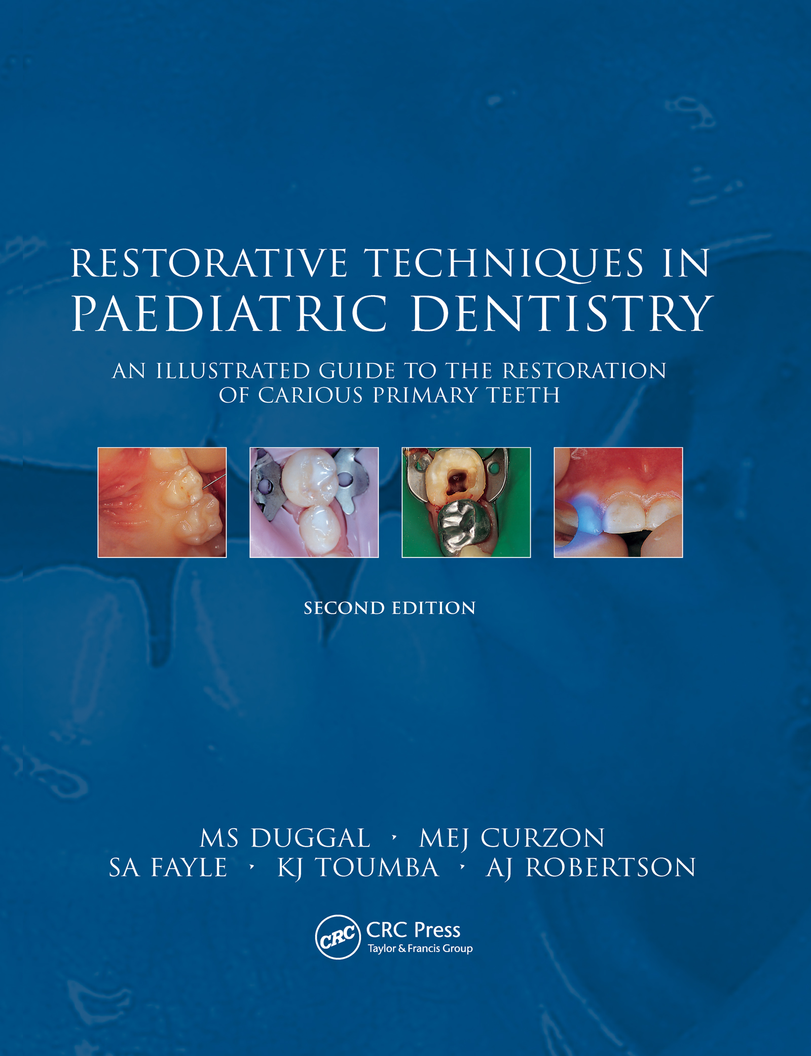 Restorative Techniques in Paediatric Dentistry