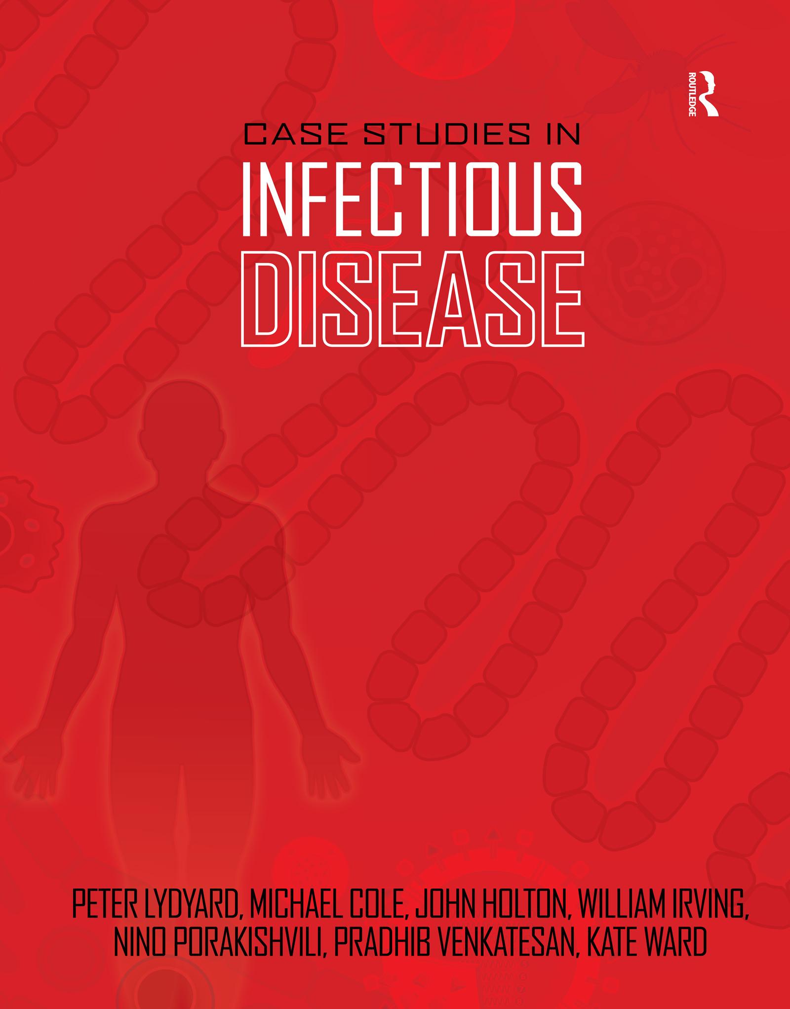 Coxsackie B virus