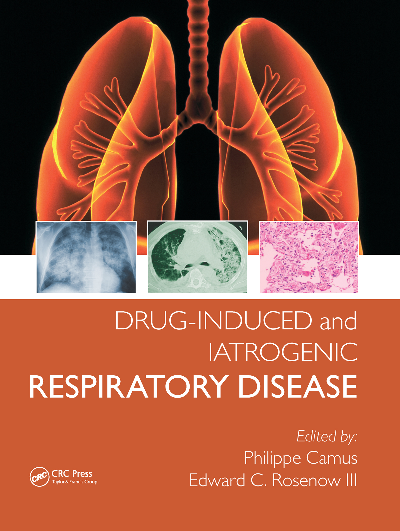 Drug-induced and Iatrogenic Respiratory Disease: 1st Edition (Hardback) book cover