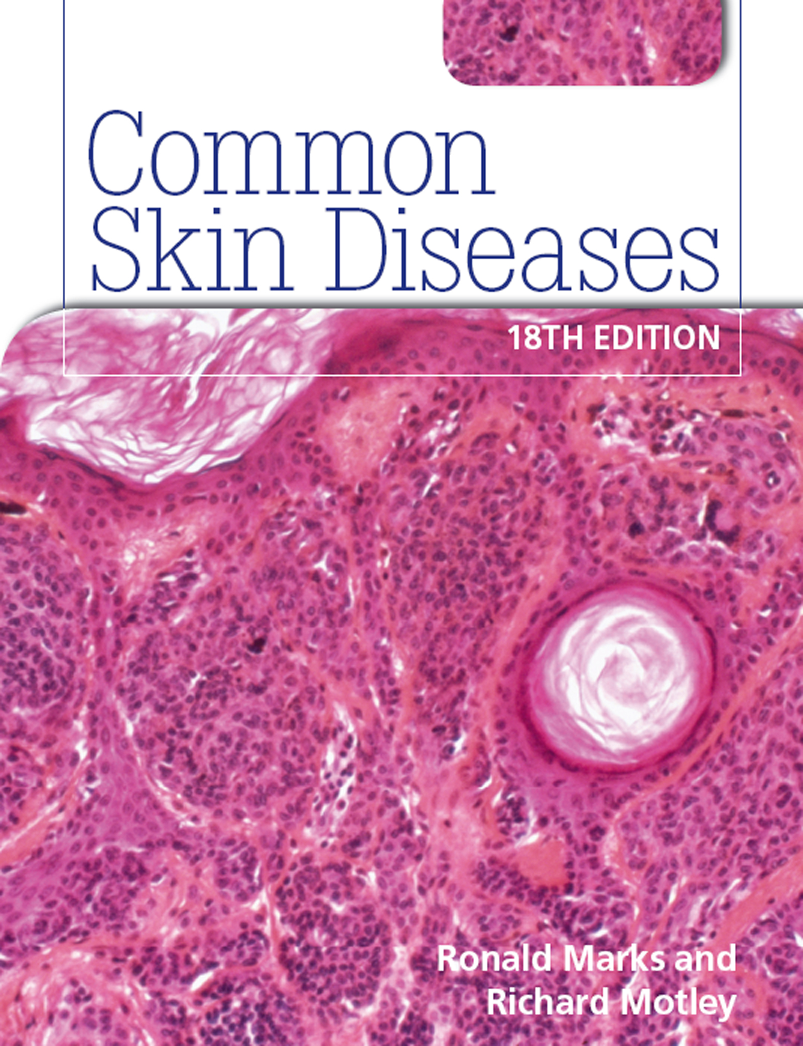 Common Skin Diseases 18th edition book cover