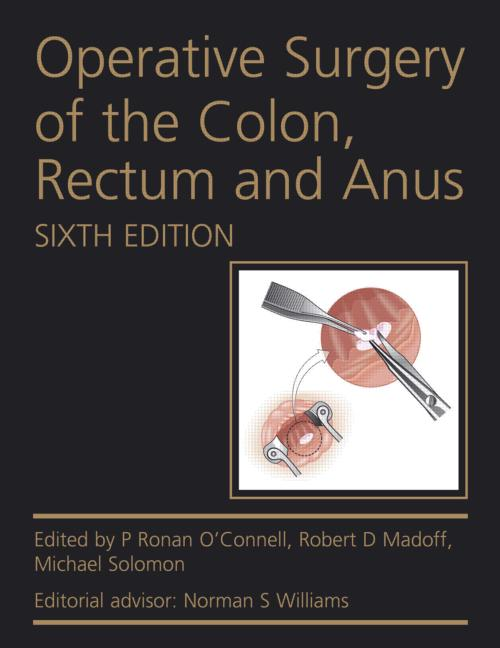 Operative Surgery of the Colon, Rectum and Anus, Sixth Edition