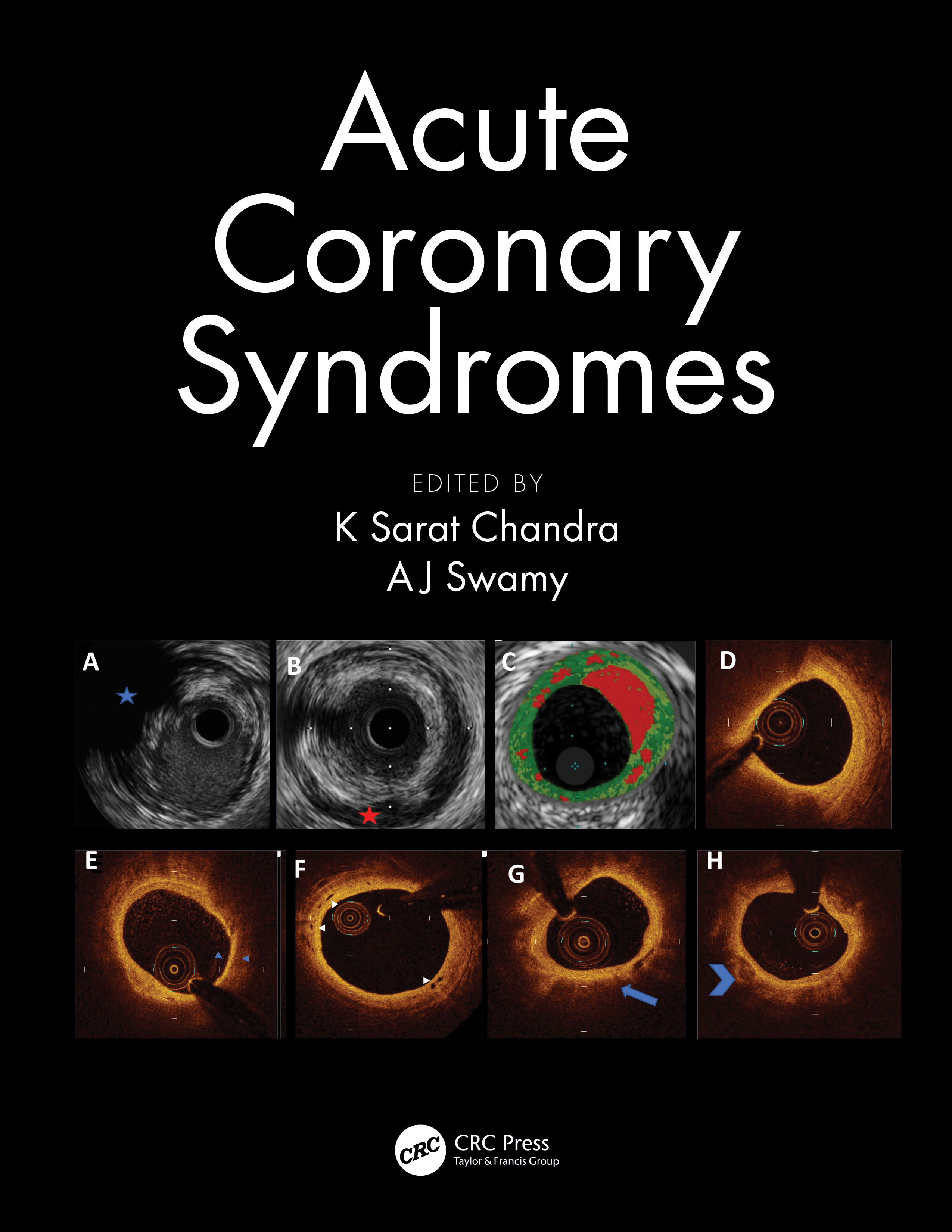 Acute Coronary Syndromes book cover