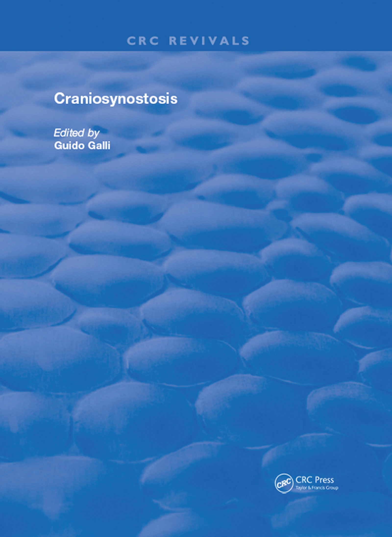 Craniosynostosis: 1st Edition (Hardback) book cover