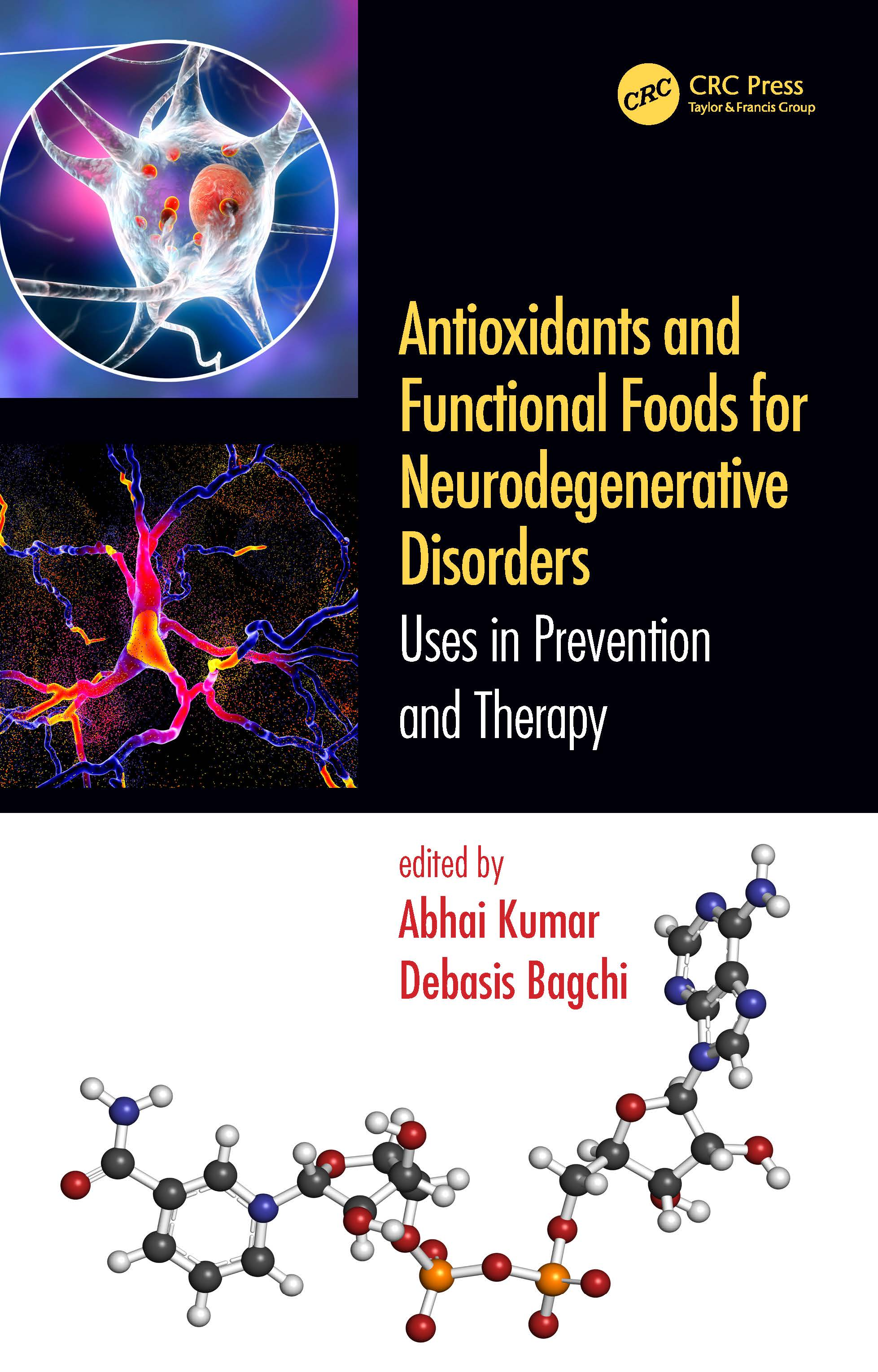 Role of Oxidative Stress in the Onset of Alzheimer's Disease