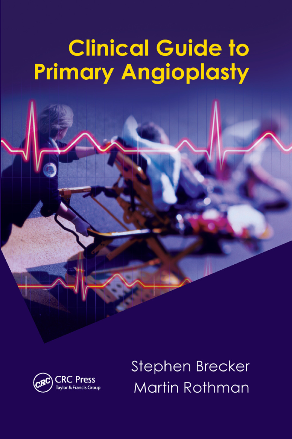 Clinical Guide to Primary Angioplasty: 1st Edition (Paperback) book cover