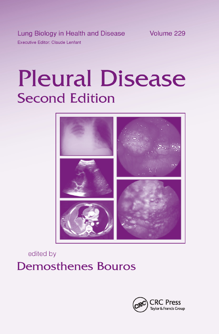 Pleural Disease: 2nd Edition (Paperback) book cover