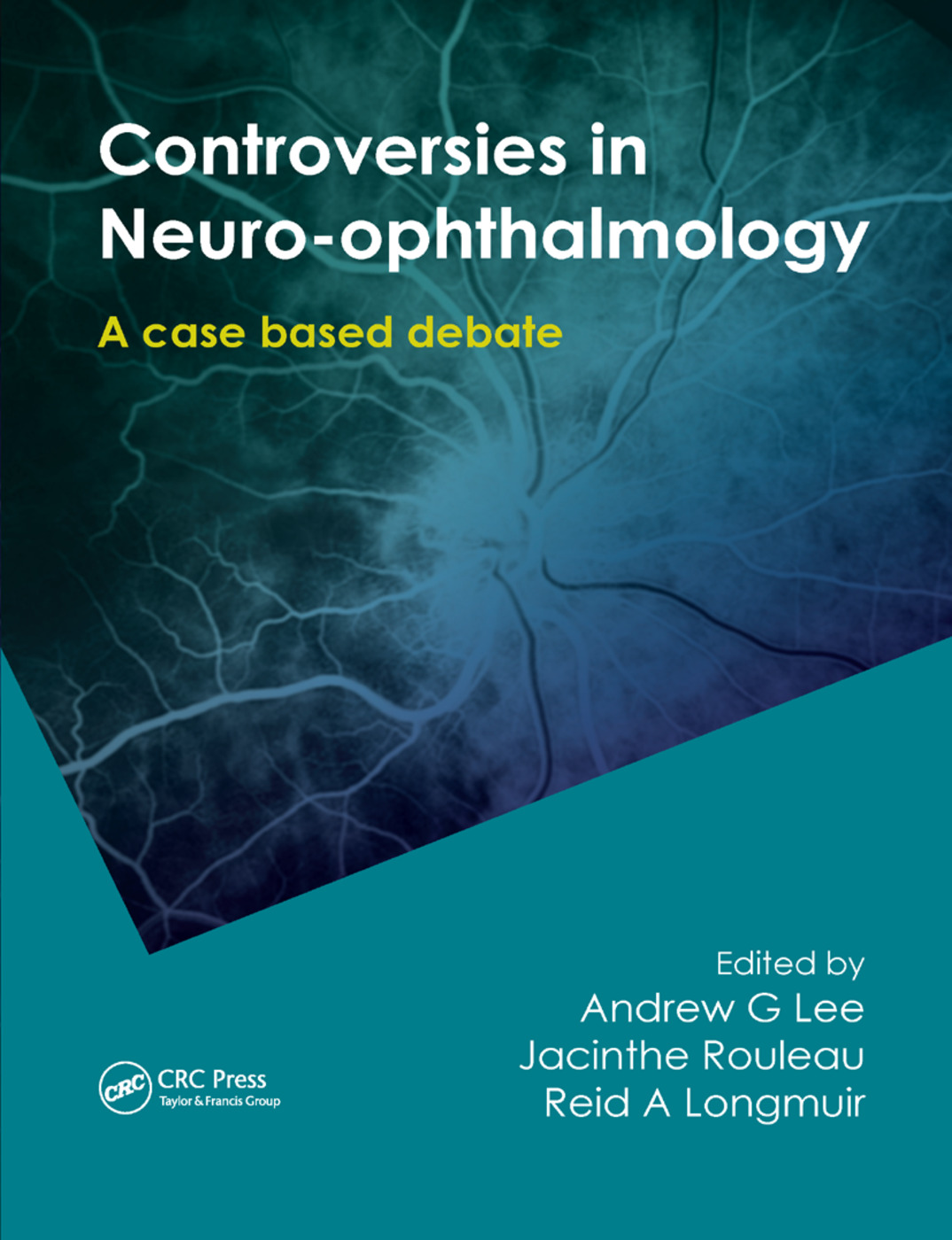 Controversies in Neuro-Ophthalmology: 1st Edition (Paperback) book cover