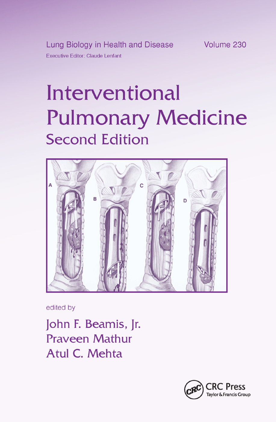 Interventional Pulmonary Medicine: 2nd Edition (Paperback) book cover