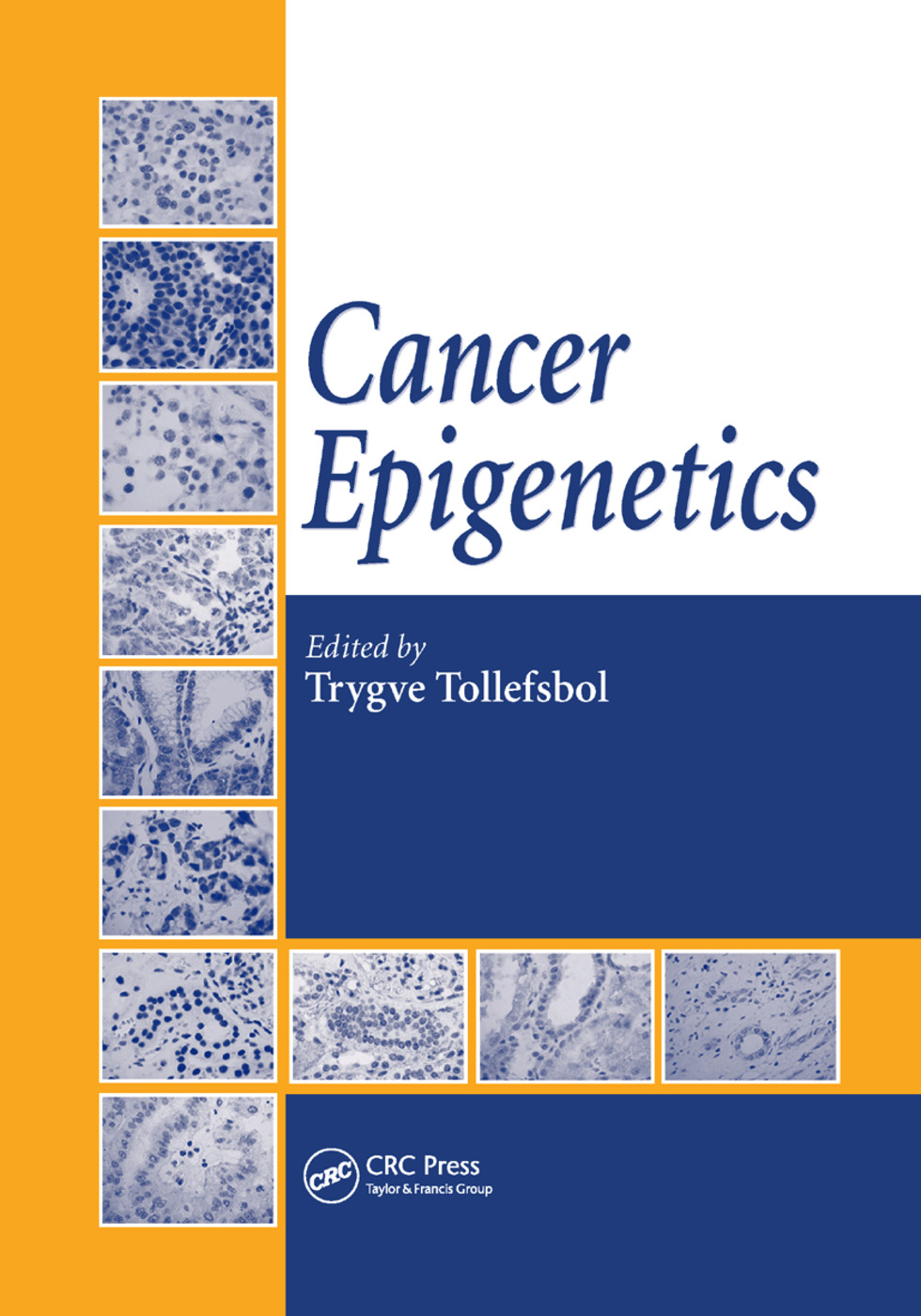 Cancer Epigenetics: 1st Edition (Paperback) book cover