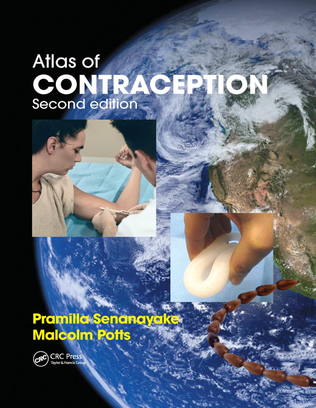 Atlas of Contraception