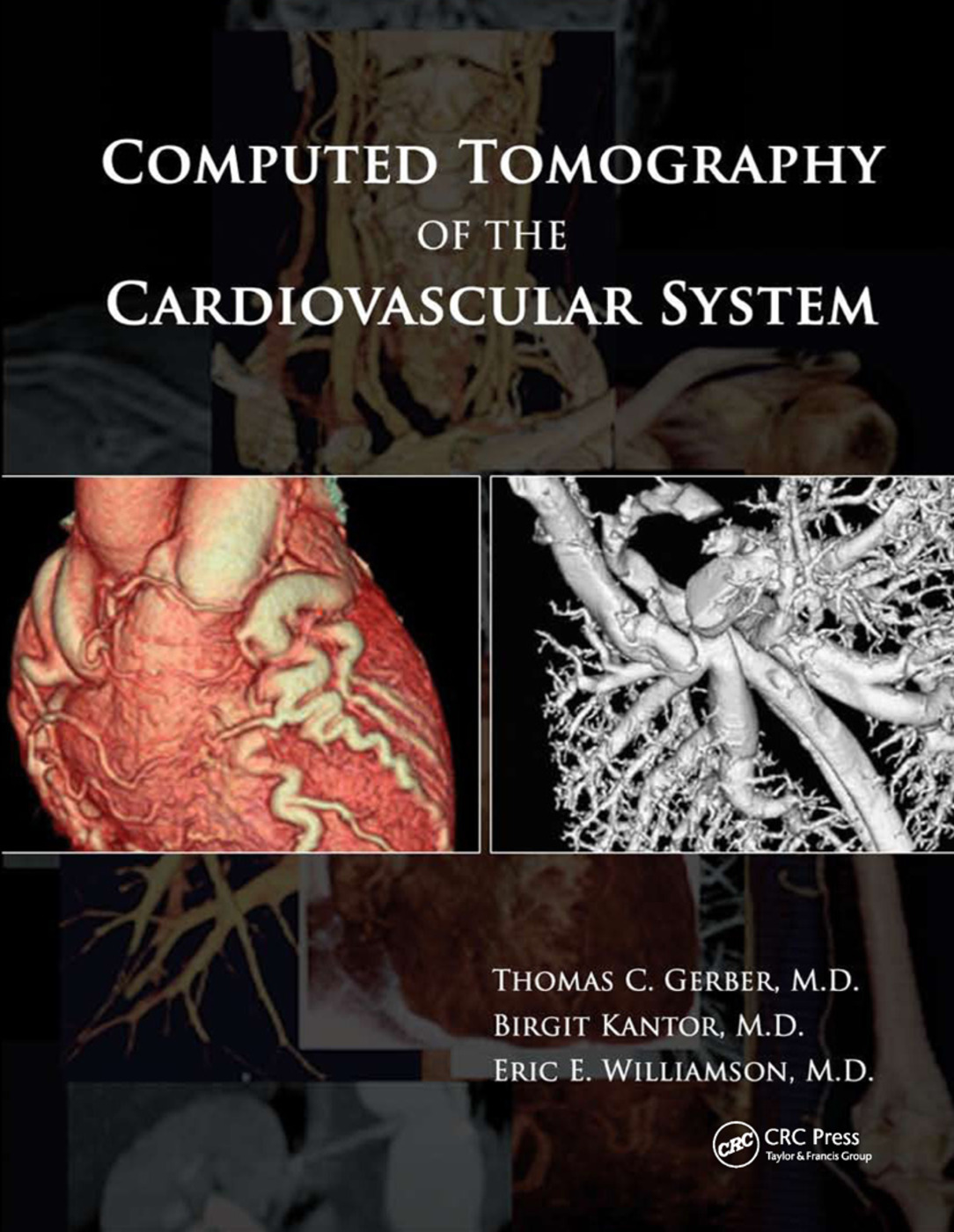 Computed Tomography of the Cardiovascular System: 1st Edition (Paperback) book cover