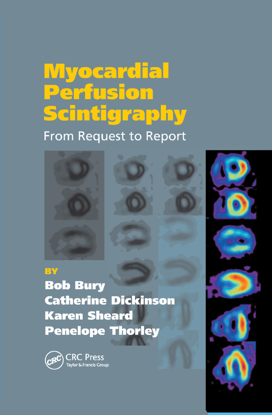 Myocardial Perfusion Scintigraphy: From Request to Report, 1st Edition (Paperback) book cover