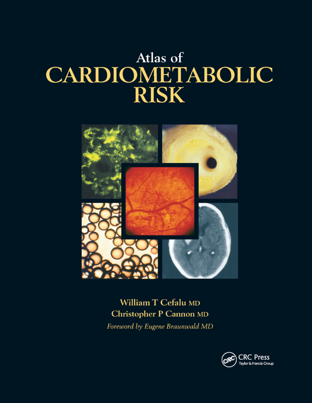 Atlas of Cardiometabolic Risk: 1st Edition (Paperback) book cover
