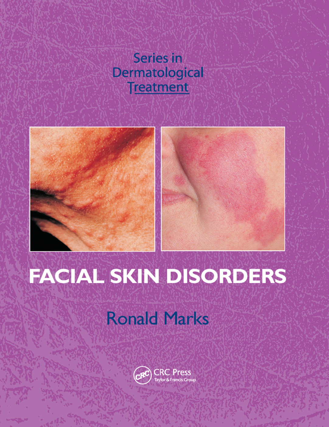 Facial Skin Disorders: 1st Edition (Paperback) book cover
