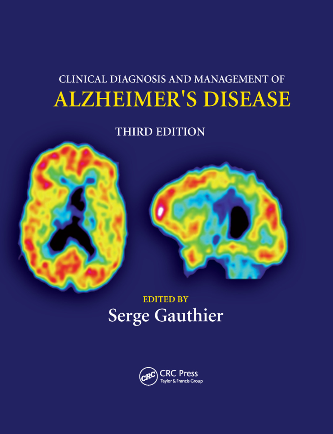 Clinical Diagnosis and Management of Alzheimer's Disease: 3rd Edition (Paperback) book cover