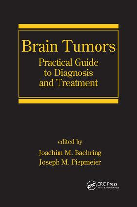 Brain Tumors: Practical Guide to Diagnosis and Treatment, 1st Edition (Paperback) book cover