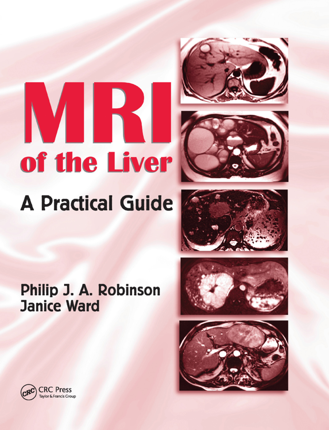 MRI of the Liver: A Practical Guide, 1st Edition (Paperback) book cover