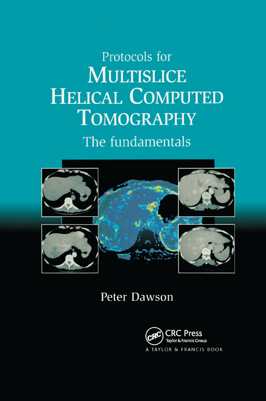 Protocols for Multislice Helical Computed Tomography: The Fundamentals, 1st Edition (Paperback) book cover
