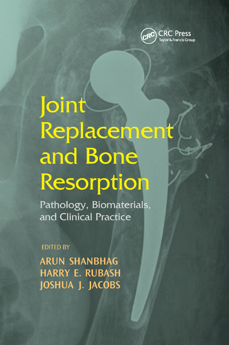Joint Replacement and Bone Resorption: Pathology, Biomaterials and Clinical Practice, 1st Edition (Hardback) book cover