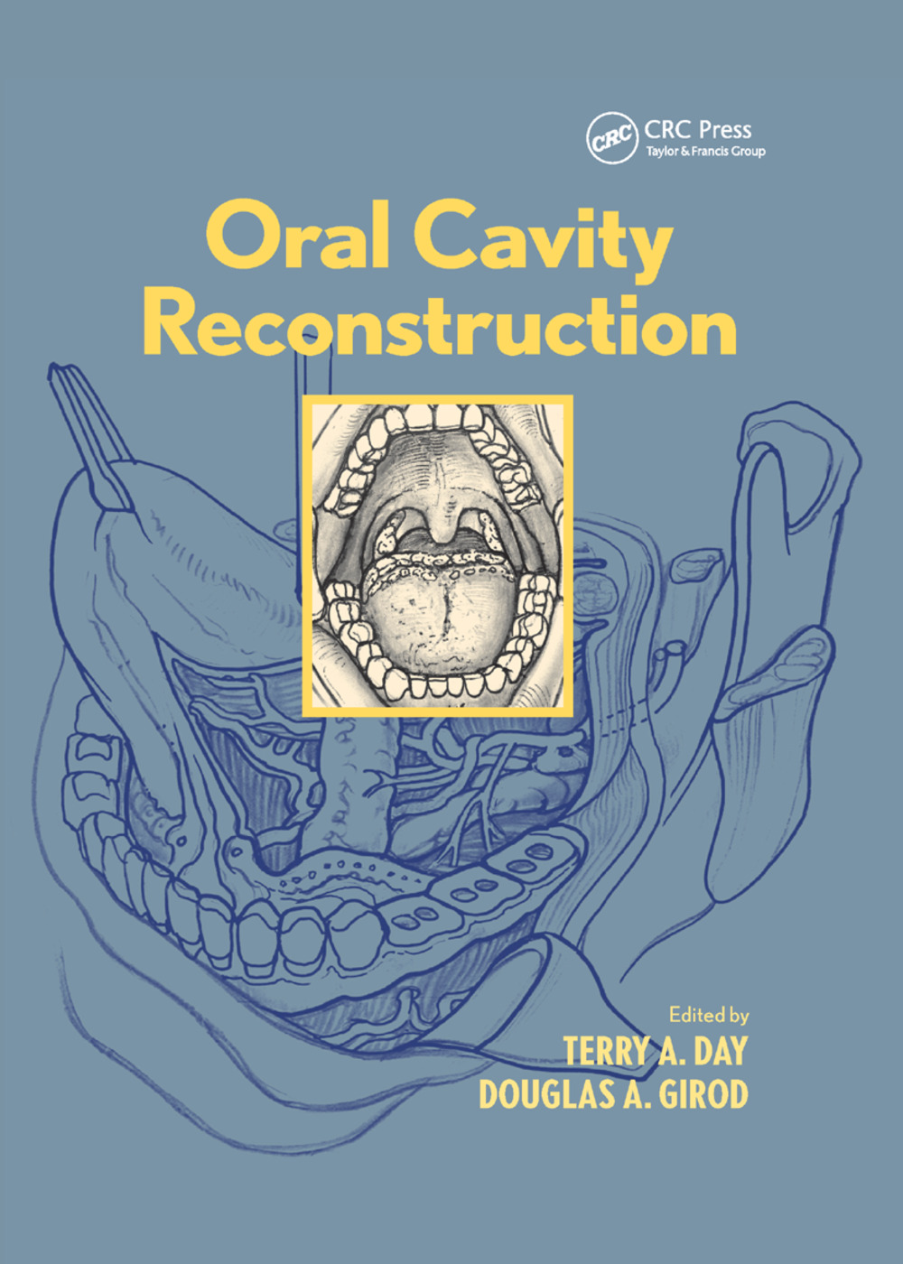 Oral Cavity Reconstruction: 1st Edition (Paperback) book cover