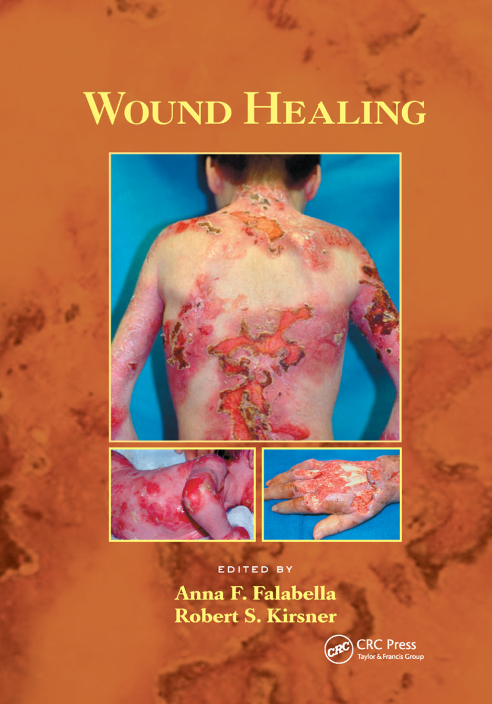 Wound Healing: 1st Edition (Paperback) book cover