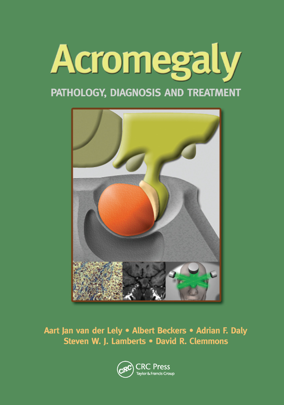 Acromegaly: Pathology, Diagnosis and Treatment, 1st Edition (Paperback) book cover