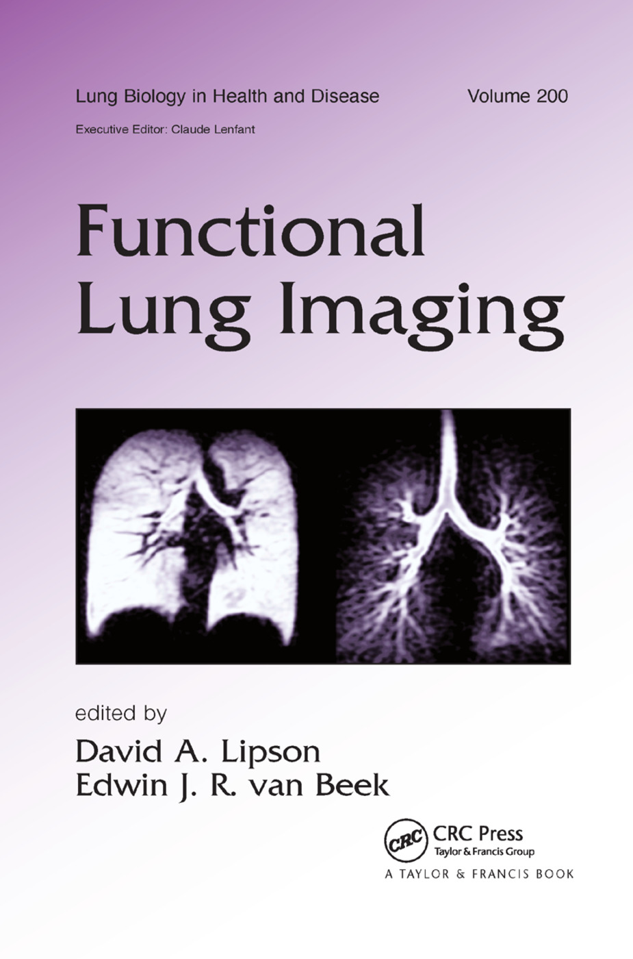Functional Lung Imaging: 1st Edition (Paperback) book cover