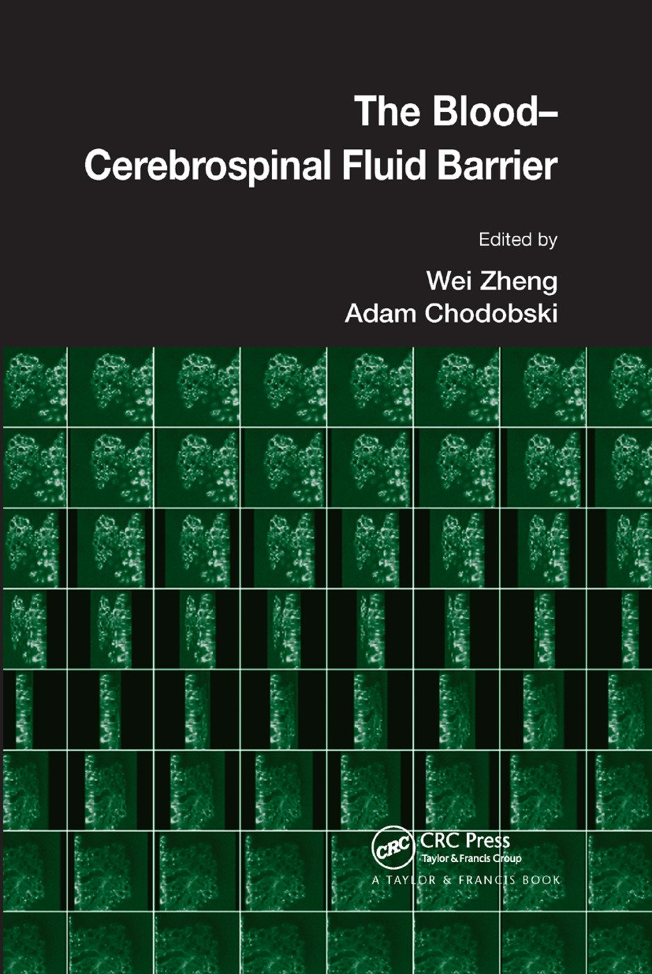 The Blood-Cerebrospinal Fluid Barrier: 1st Edition (Paperback) book cover