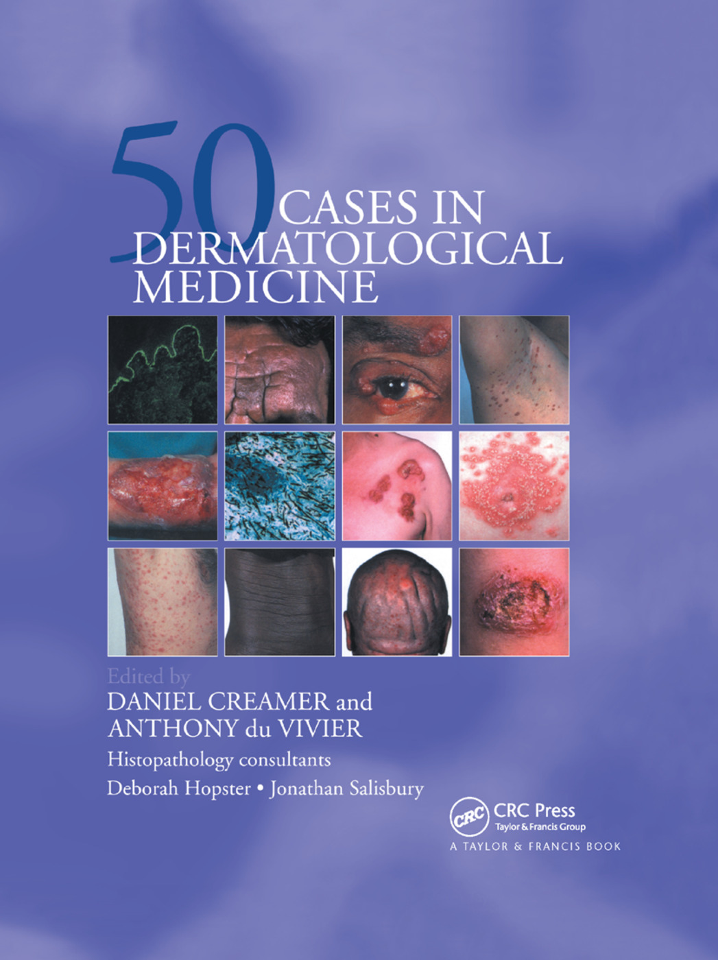 Fifty Dermatological Cases: 1st Edition (Paperback) book cover