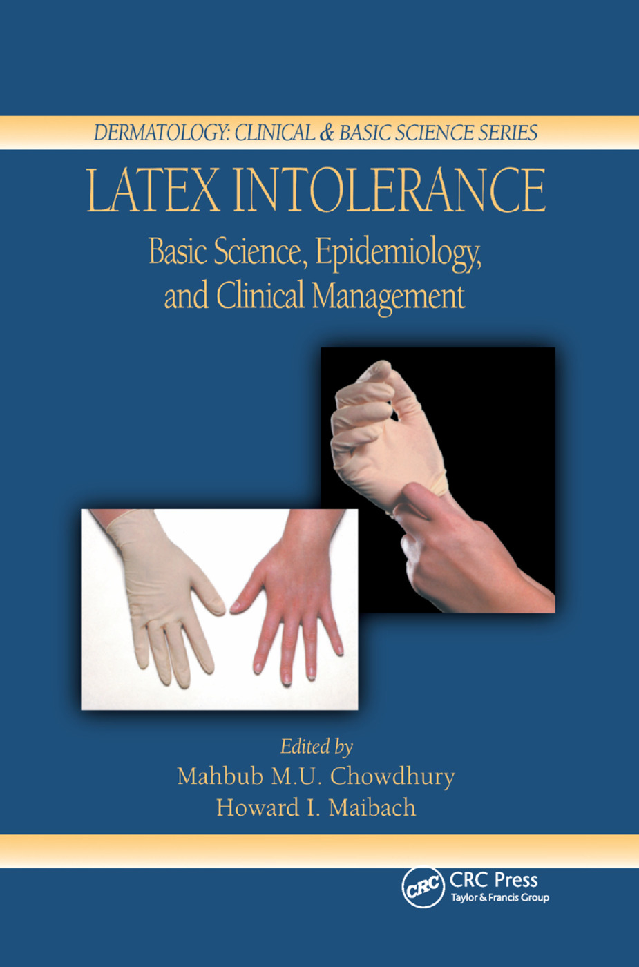 Latex Intolerance: Basic Science, Epidemiology, and Clinical Management, 1st Edition (Paperback) book cover