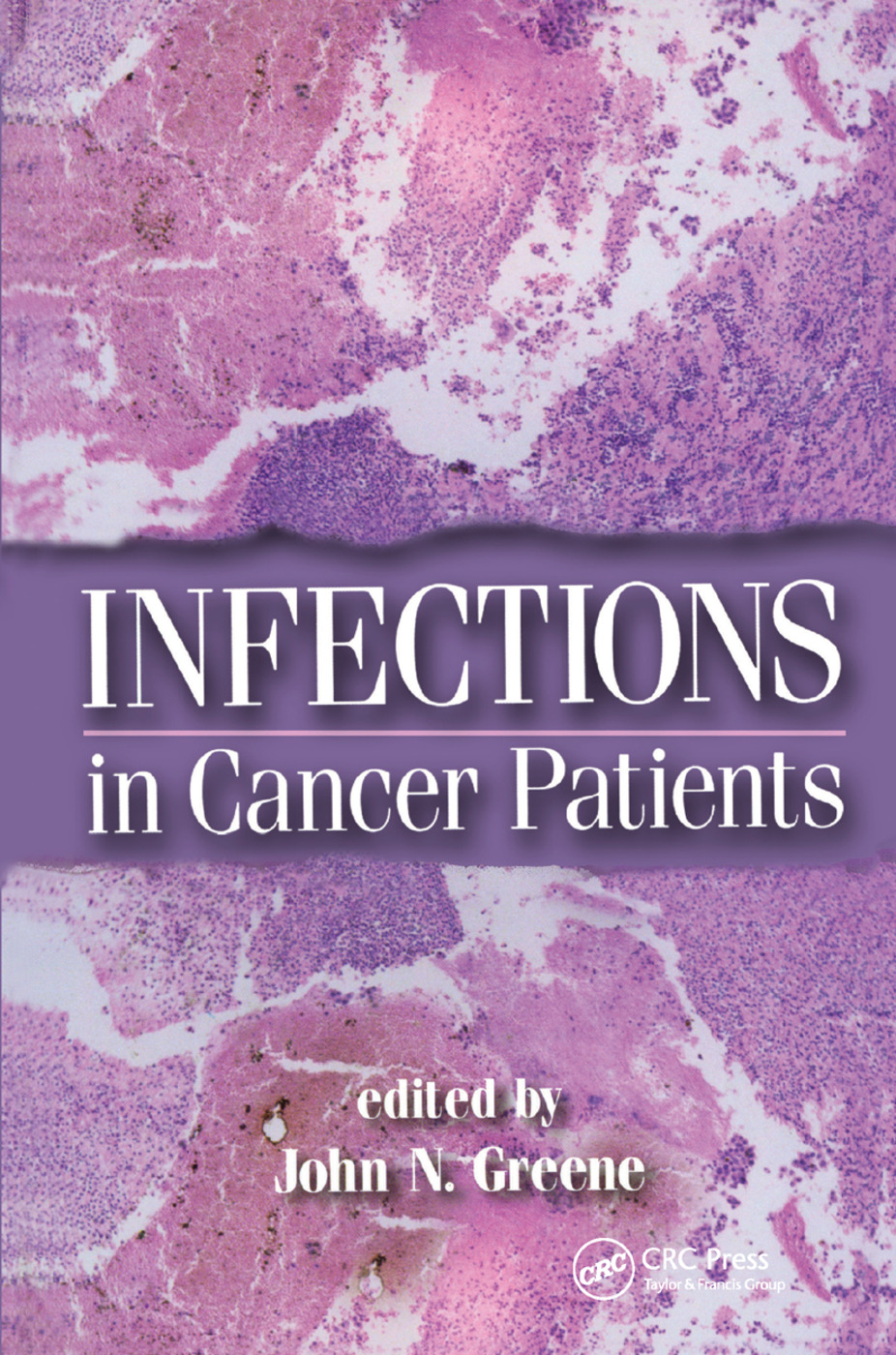 Infections in Cancer Patients: 1st Edition (Paperback) book cover