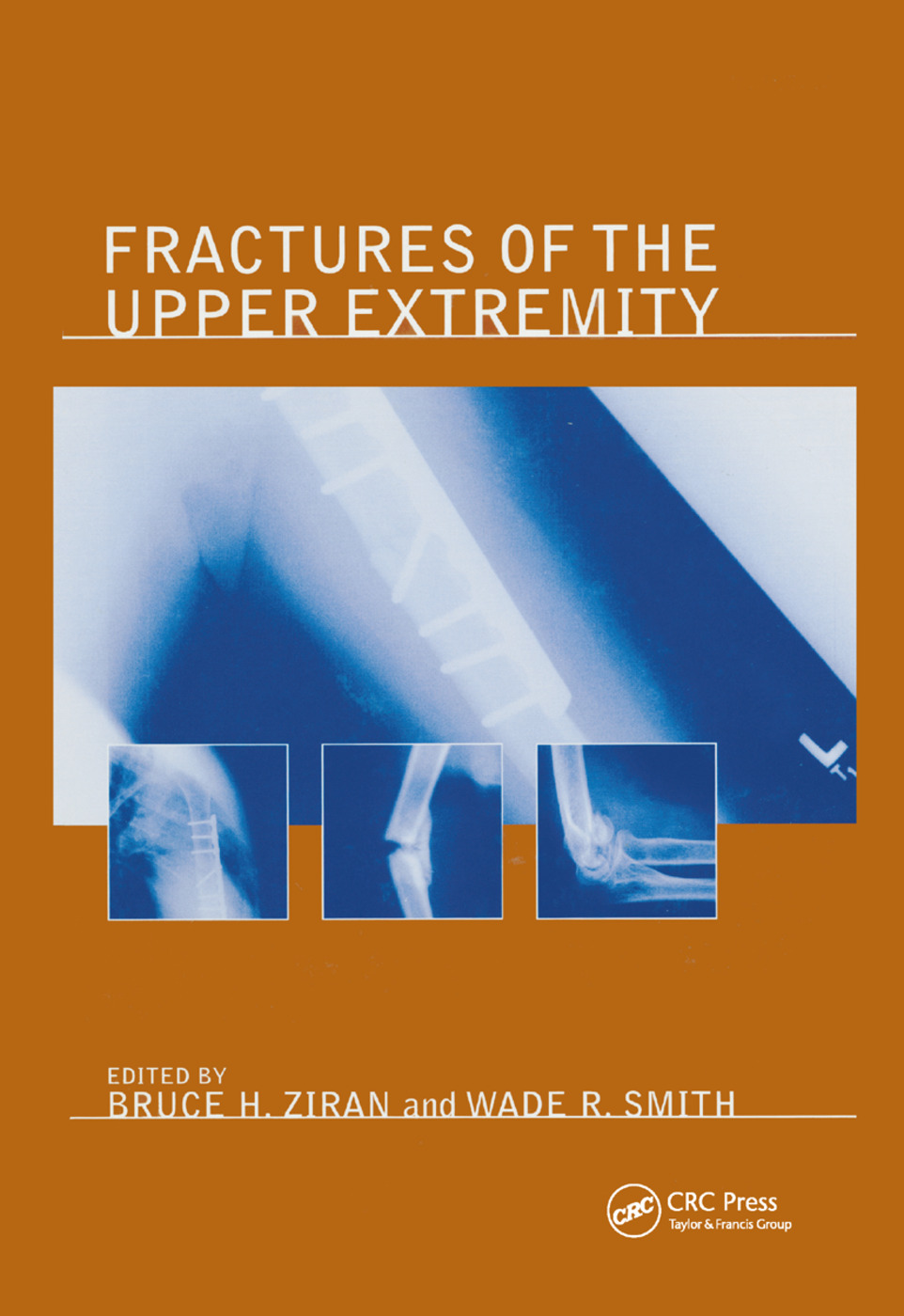 Fractures of the Upper Extremity: 1st Edition (Paperback) book cover