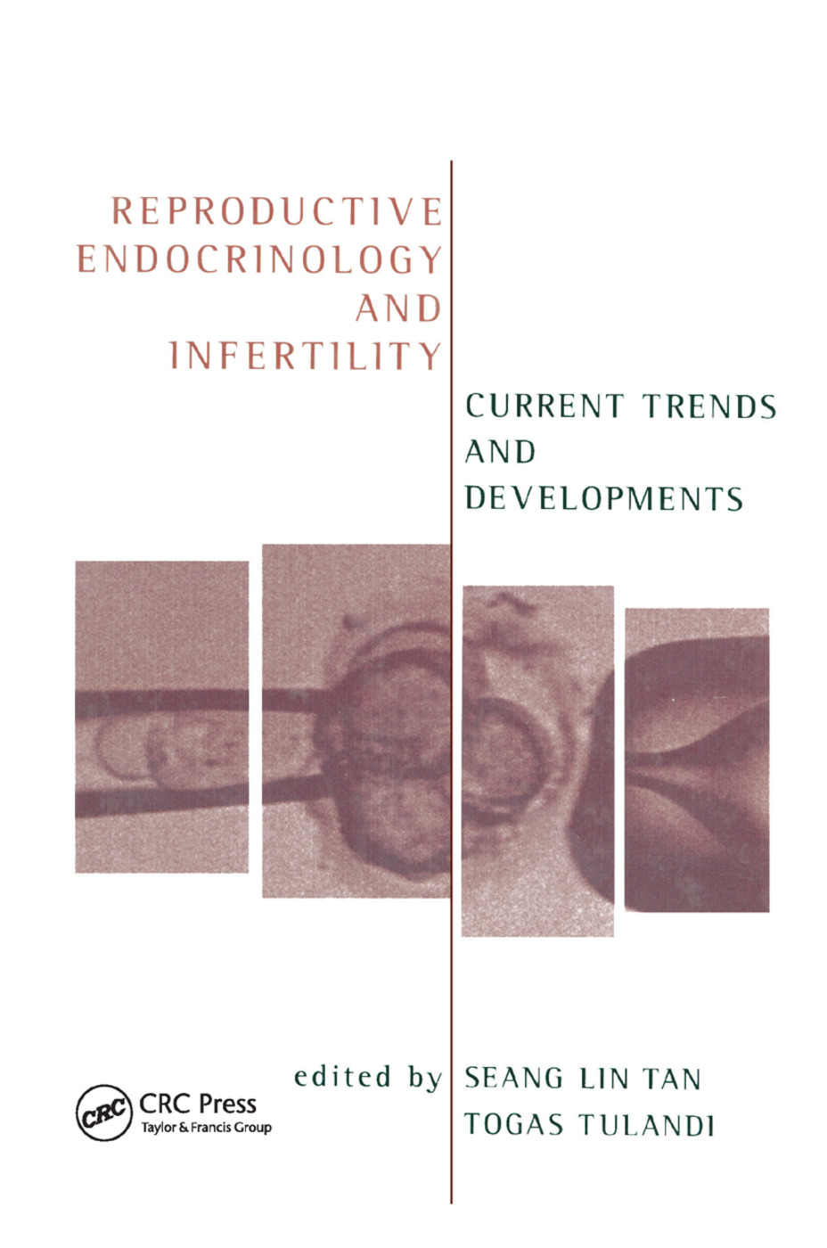 Reproductive Endocrinology and Infertility: Current Trends and Developments, 1st Edition (Paperback) book cover
