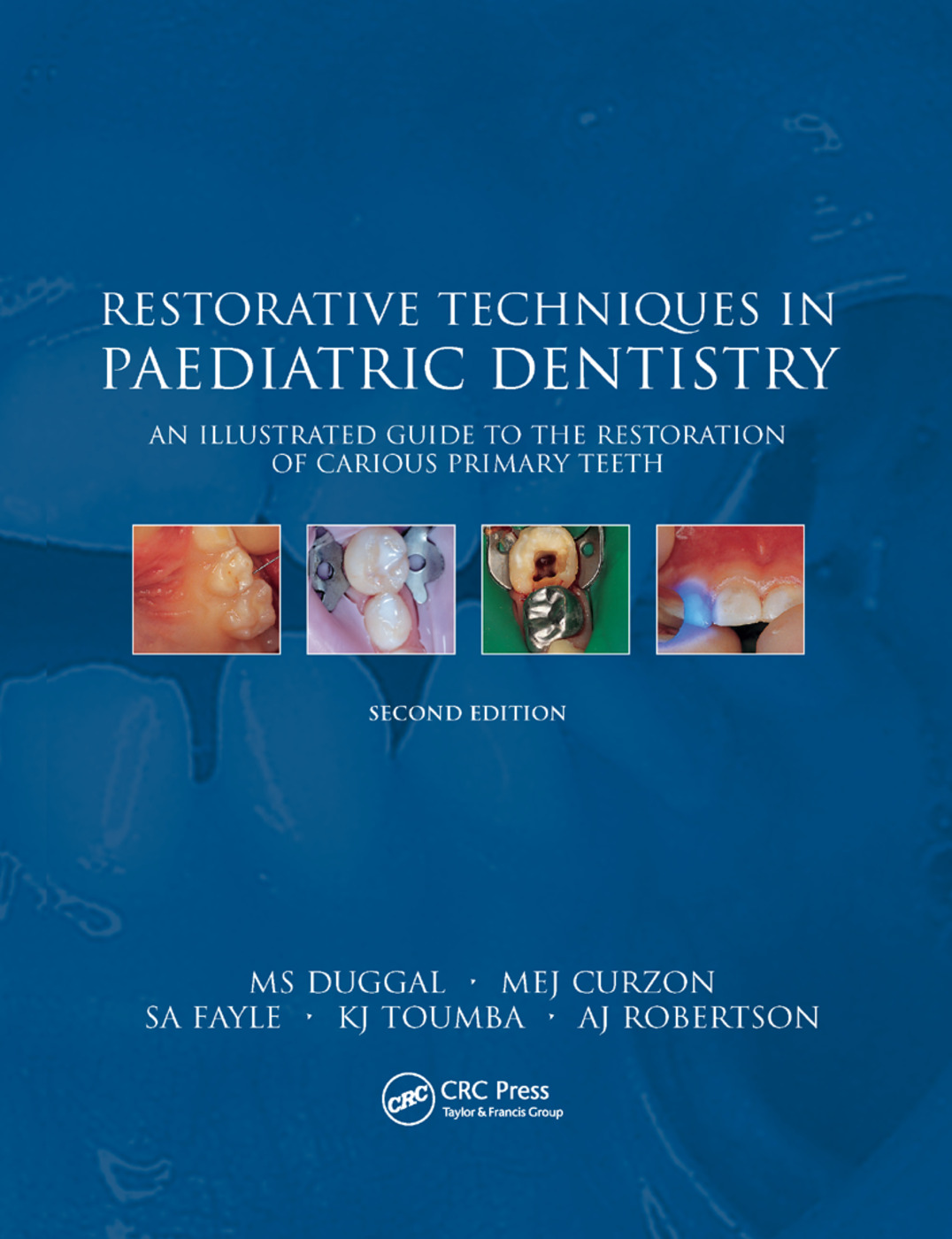 Restorative Techniques in Paediatric Dentistry: An Illustrated Guide to the Restoration of Extensive Carious Primary Teeth, 2nd Edition (Paperback) book cover