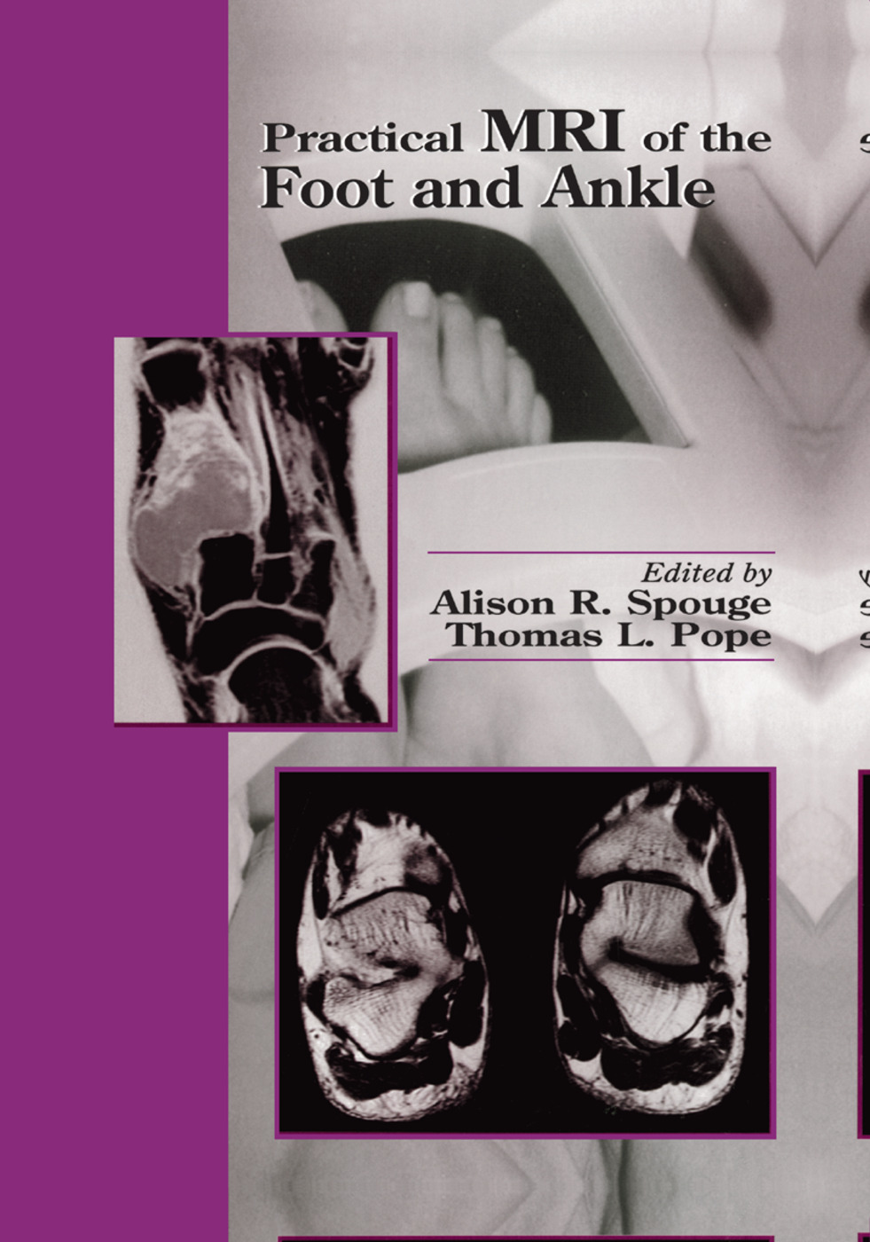 Practical MRI of the Foot and Ankle: 1st Edition (Paperback) book cover