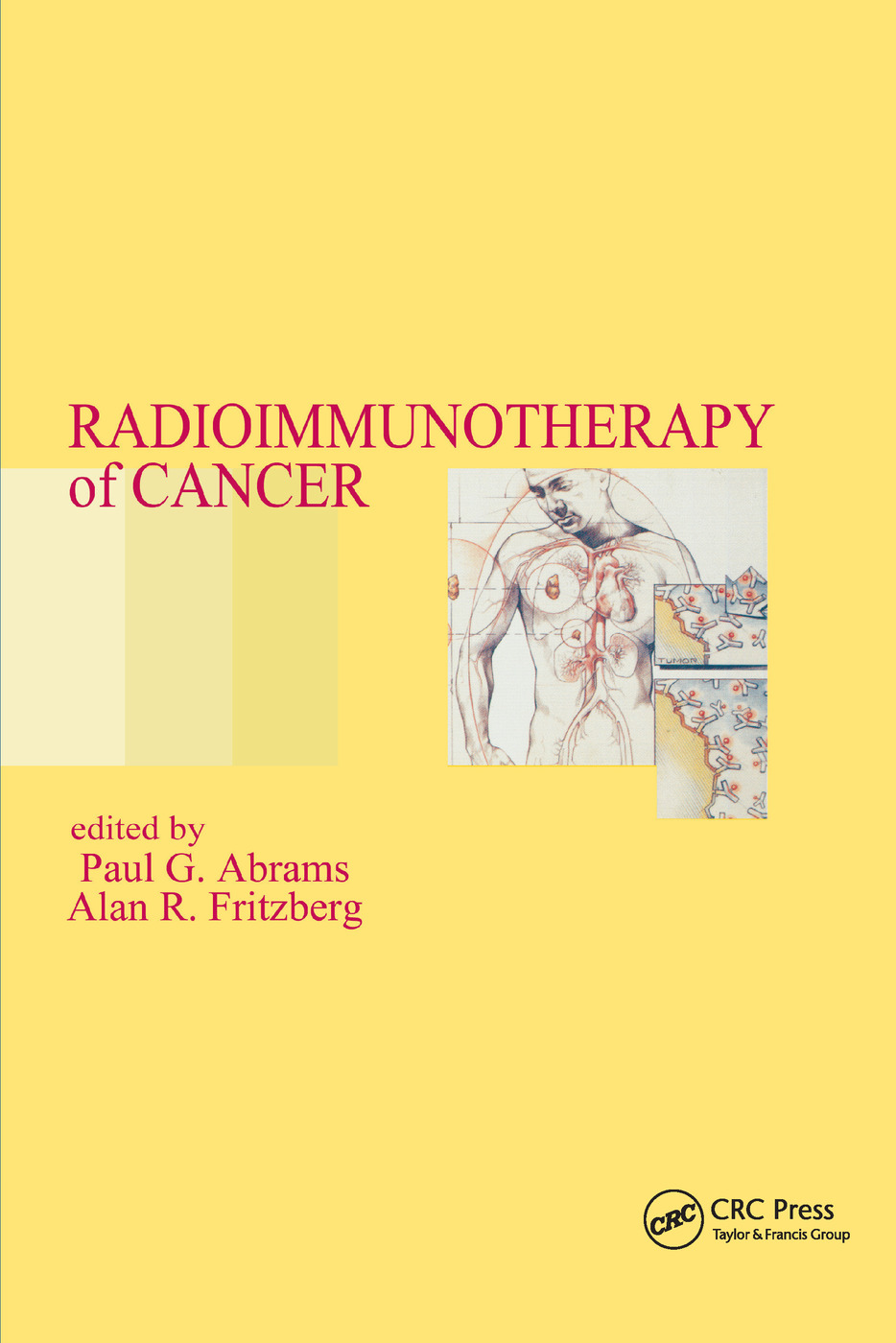 Radioimmunotherapy of Cancer: 1st Edition (Paperback) book cover