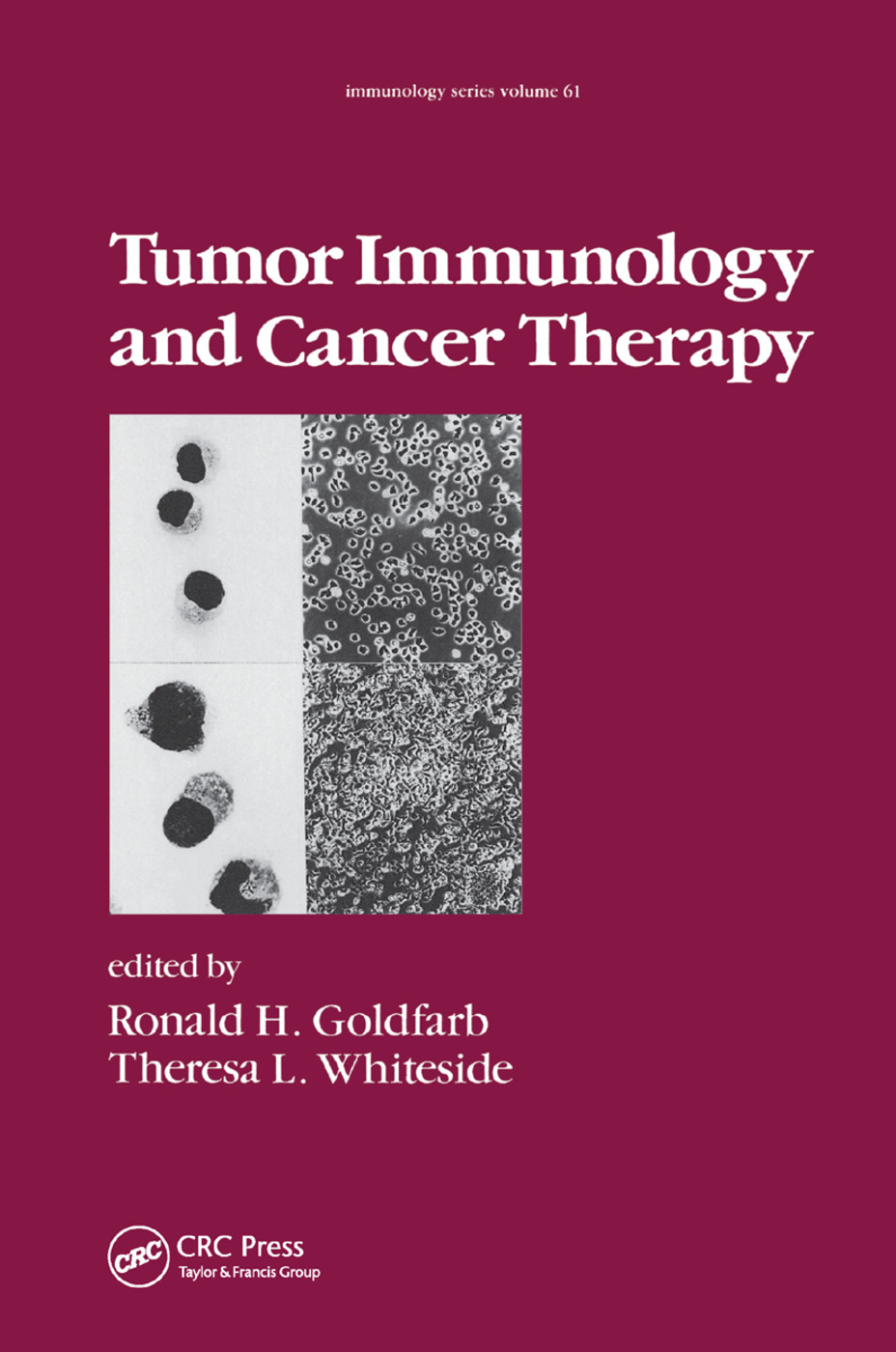 Tumor Immunology and Cancer Therapy