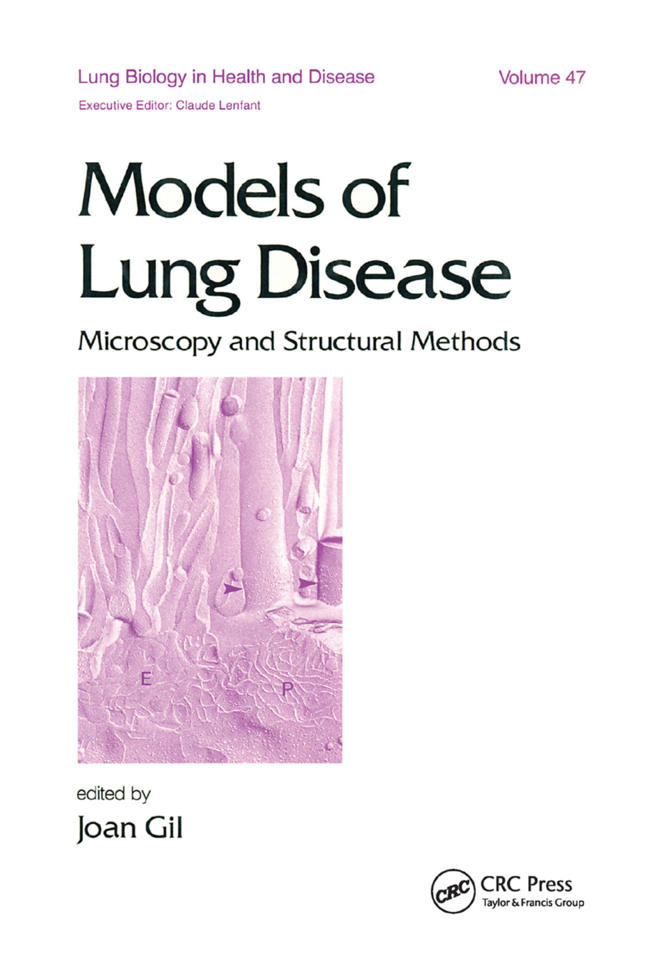 Models of Lung Disease: Microscopy and Structural Methods, 1st Edition (Paperback) book cover