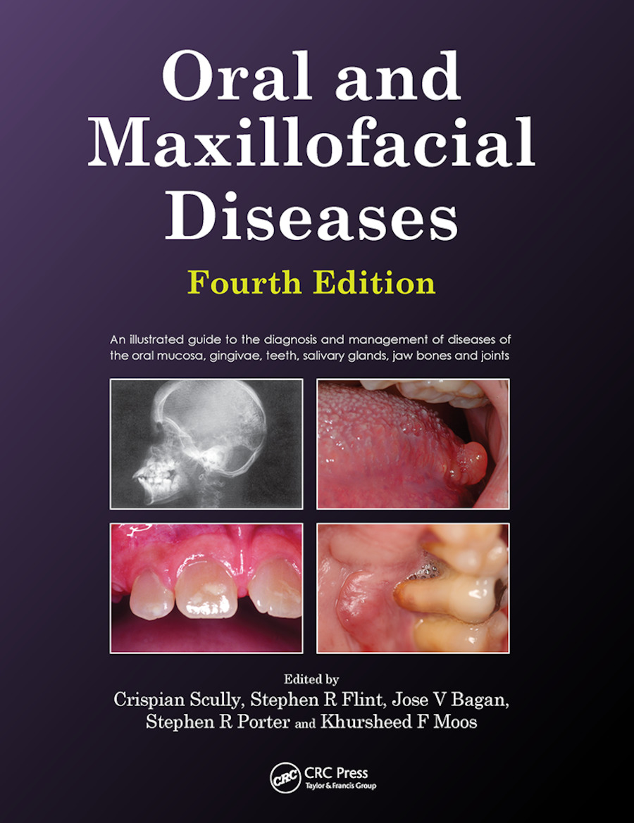 Oral and Maxillofacial Diseases, Fourth Edition: 4th Edition (Paperback) book cover
