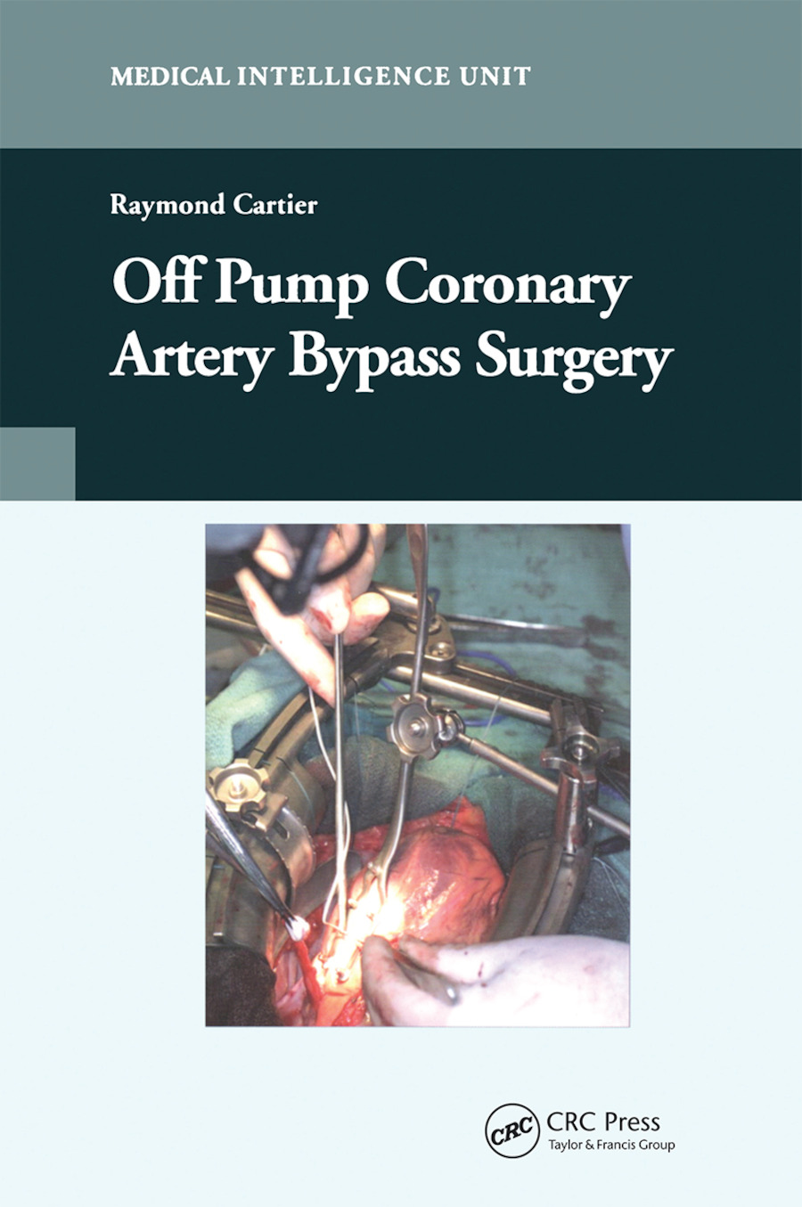 Off-Pump Coronary Artery Bypass Surgery: 1st Edition (Paperback) book cover