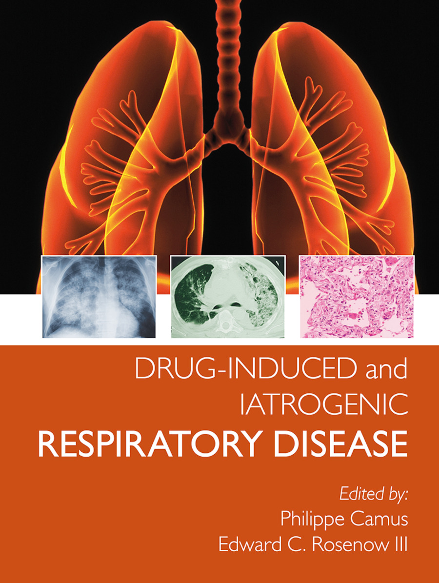 Drug-induced and Iatrogenic Respiratory Disease: 1st Edition (Paperback) book cover