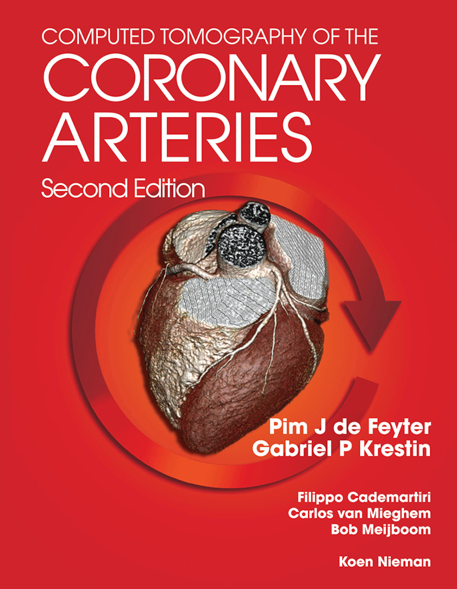 Computed Tomography of the Coronary Arteries: 2nd Edition (Paperback) book cover