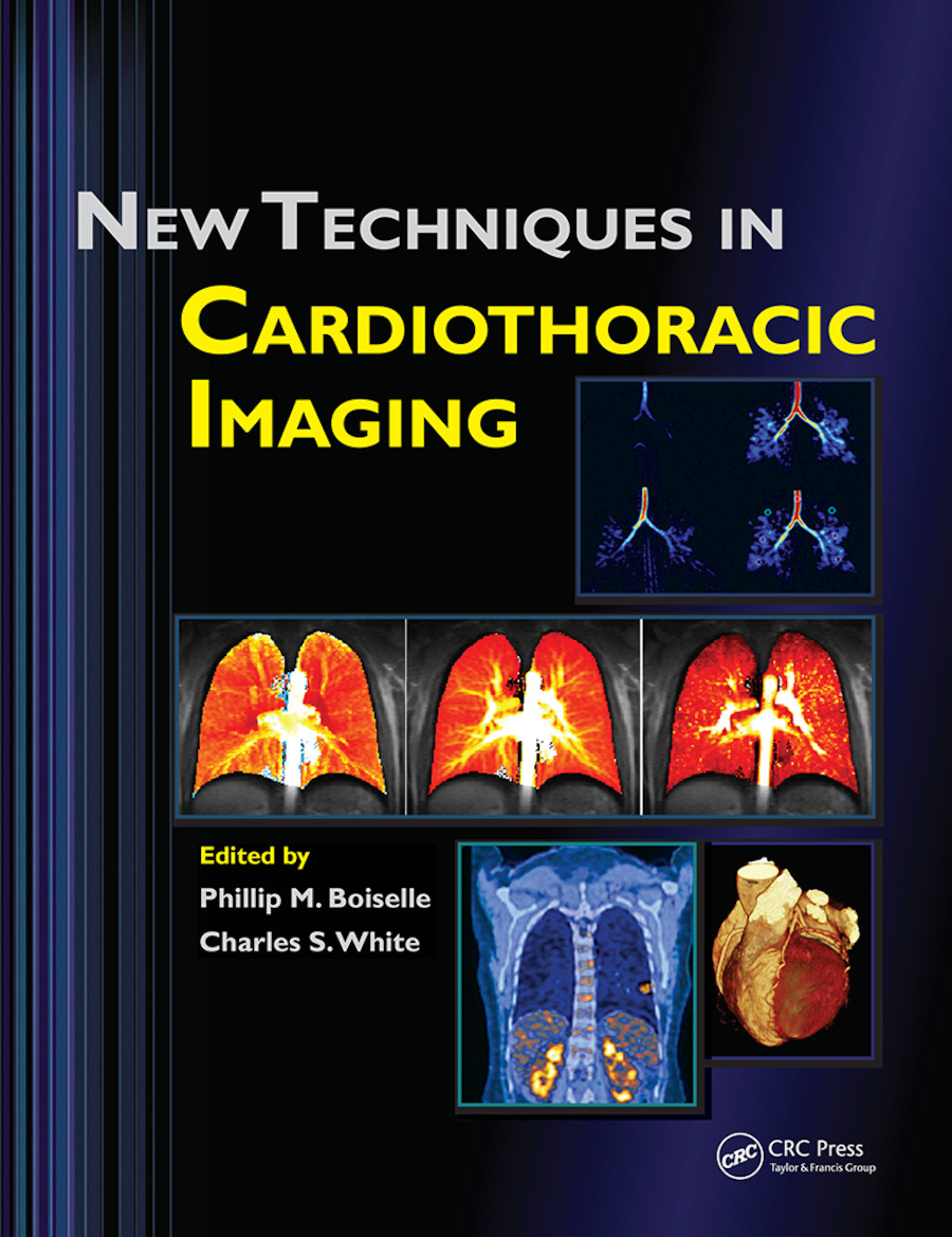 New Techniques in Cardiothoracic Imaging: 1st Edition (Paperback) book cover