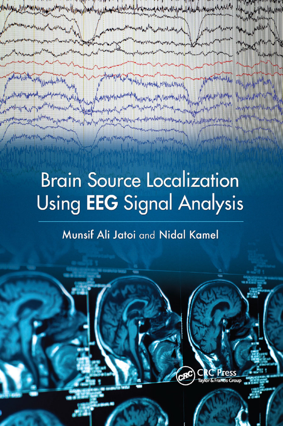 Brain Source Localization Using EEG Signal Analysis book cover