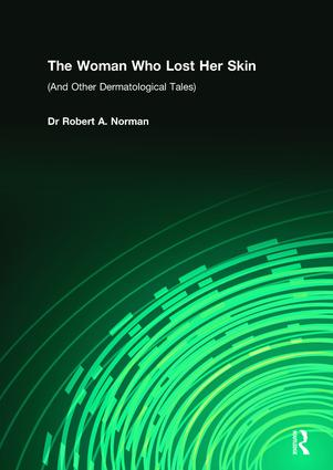 The Woman Who Lost Her Skin: (And Other Dermatological Tales), 1st Edition (Paperback) book cover