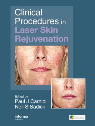 Clinical Procedures in Laser Skin Rejuvenation: 1st Edition (Hardback) book cover
