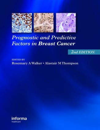 Prognostic and Predictive Factors in Breast Cancer: 2nd Edition (Paperback) book cover