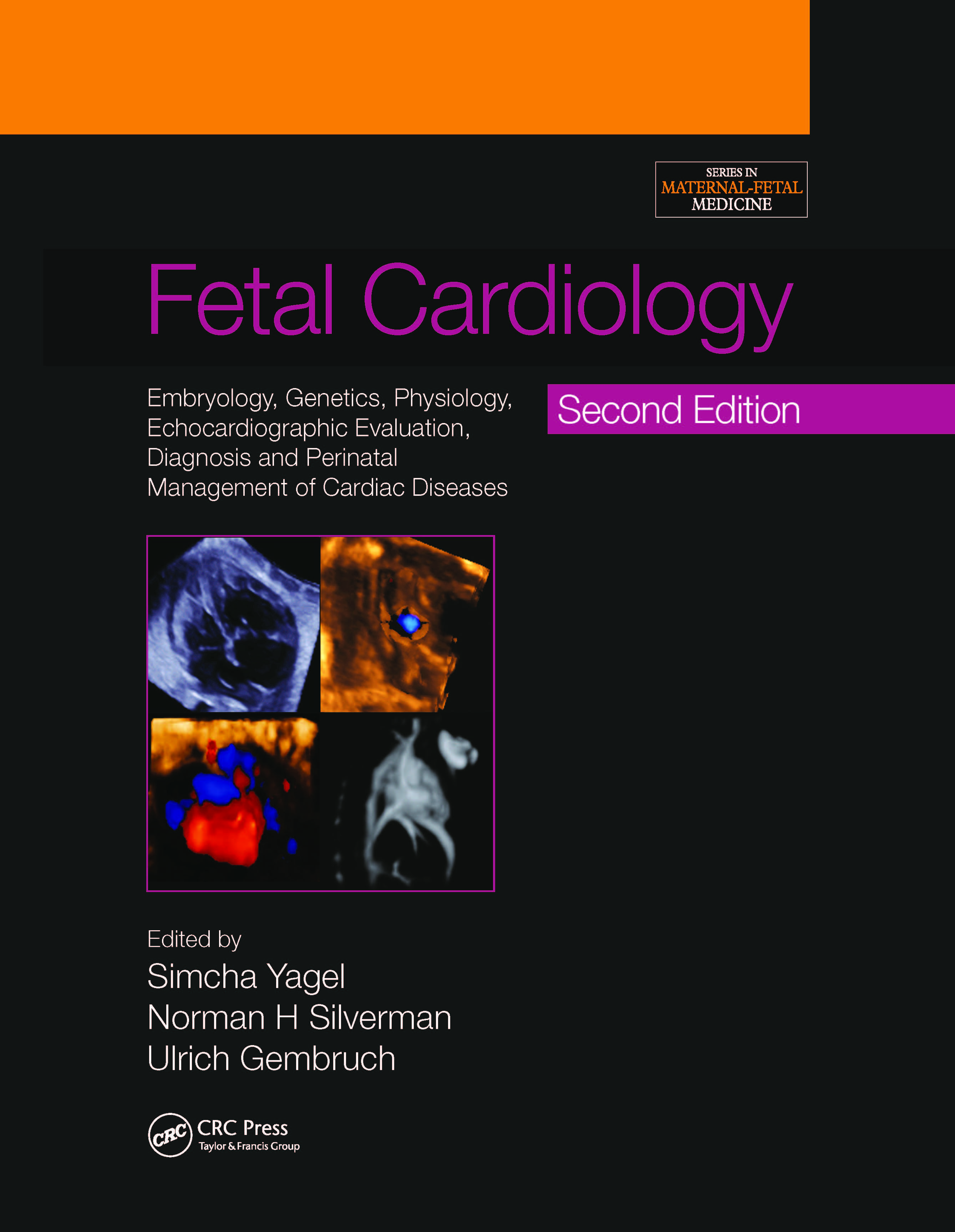Fetal Cardiology: Embryology, Genetics, Physiology, Echocardiographic Evaluation, Diagnosis and Perinatal Management of Cardiac Diseases book cover