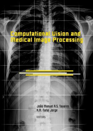 Computational Vision and Medical Image Processing: VipIMAGE 2007, 1st Edition (Hardback) book cover